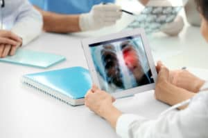 doctor is checking the lung cancer report