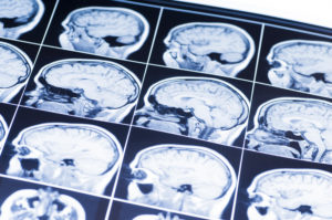 Brain X-ray after a traumatic brain injury